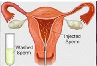 Intrauterine Insemination - IUI