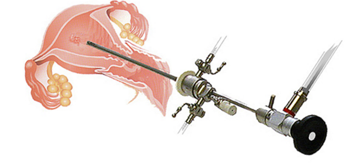 Hysteroscopy Procedure